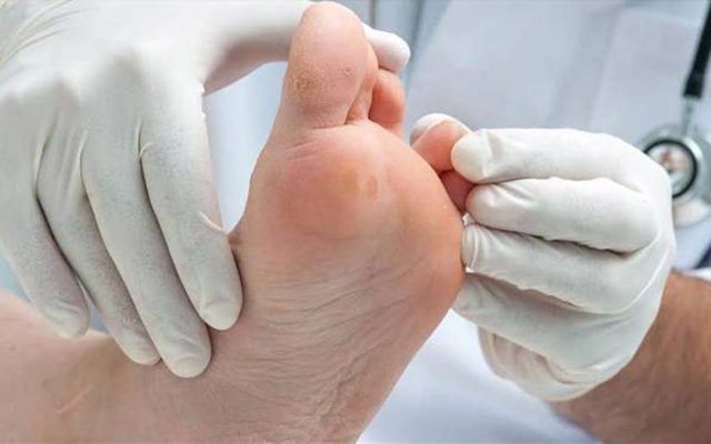 پیشگیری و درمان مشکلات پای دیابتی